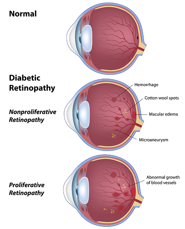 Diabetic Eye Exams Hawthorne